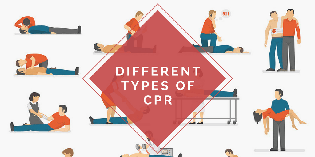Different Types of CPR